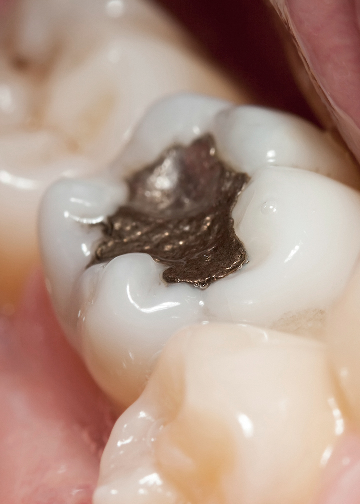 Mercury Exposure From Dentistry