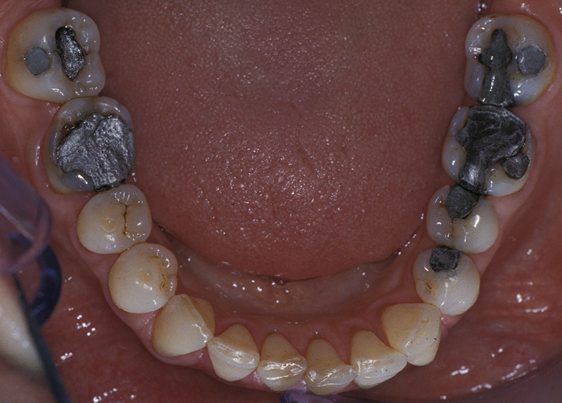 mercury in dental fillings Obviously, not everyone experiences acute toxicity effects from the mercury in amalgam fillings however, virtually everyone does have mercury build up in their bodies from implantation of such fillings.